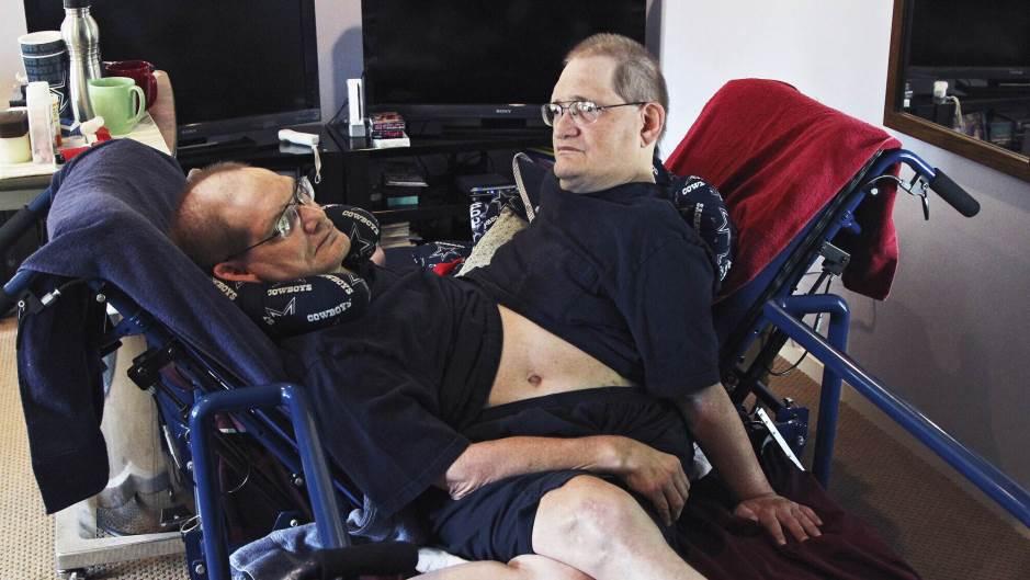 Preminuli sijamski blizanci s najdužim životnim vekom